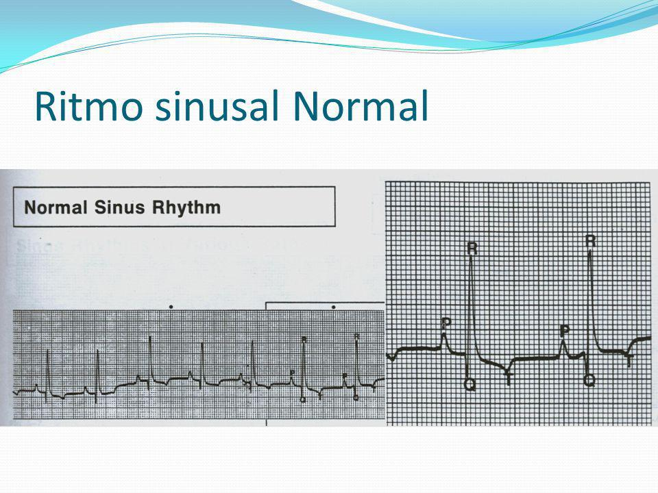 Ritmo sinusal Normal