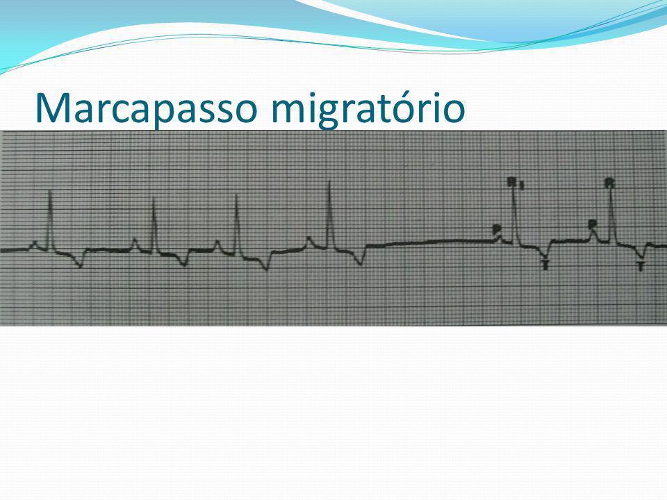Marcapasso migratório