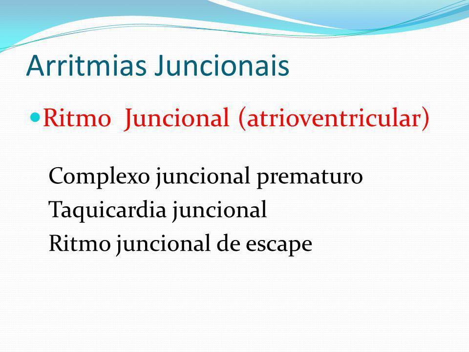 Arritmias Juncionais Ritmo Juncional (atrioventricular)