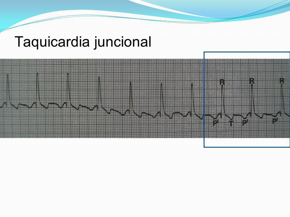 Taquicardia juncional