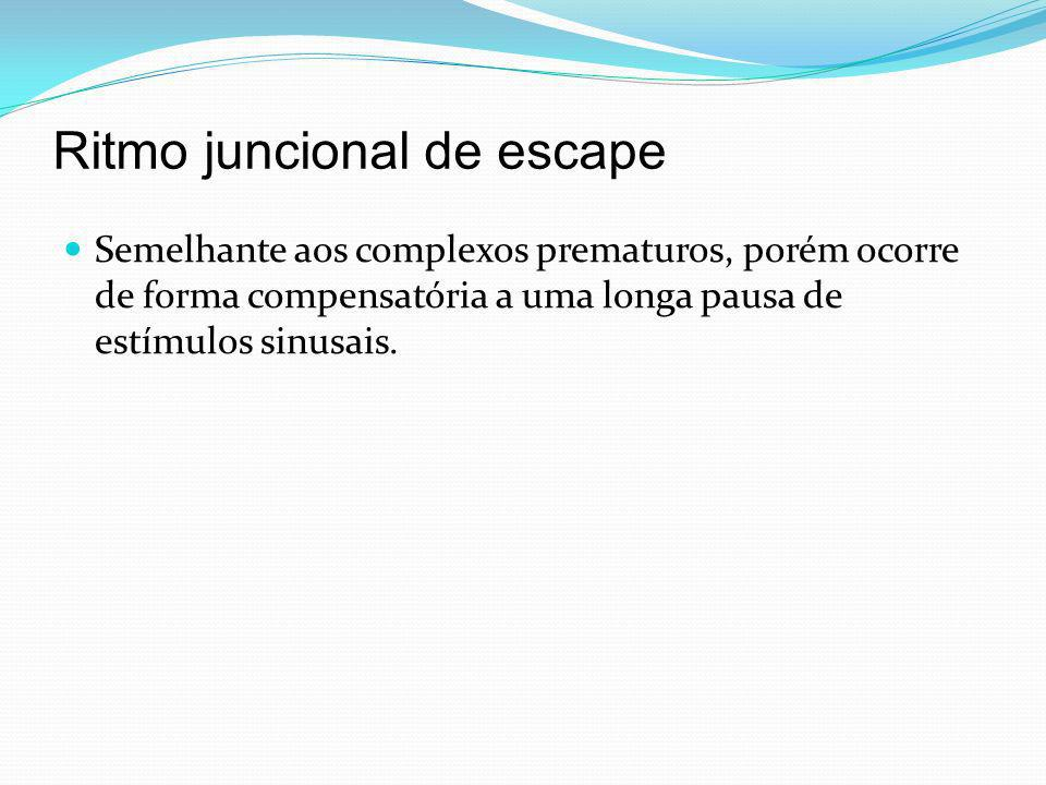 Ritmo juncional de escape