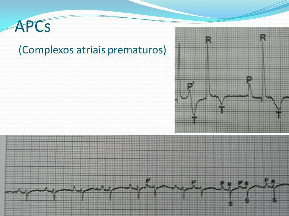 APCs (Complexos atriais prematuros)