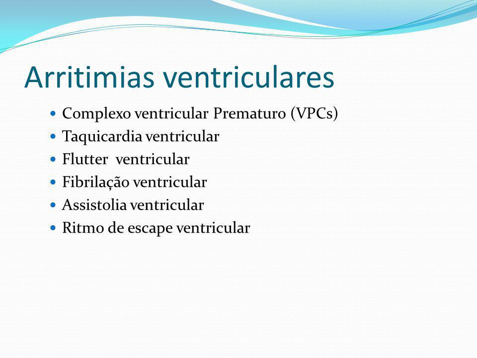 Arritimias ventriculares