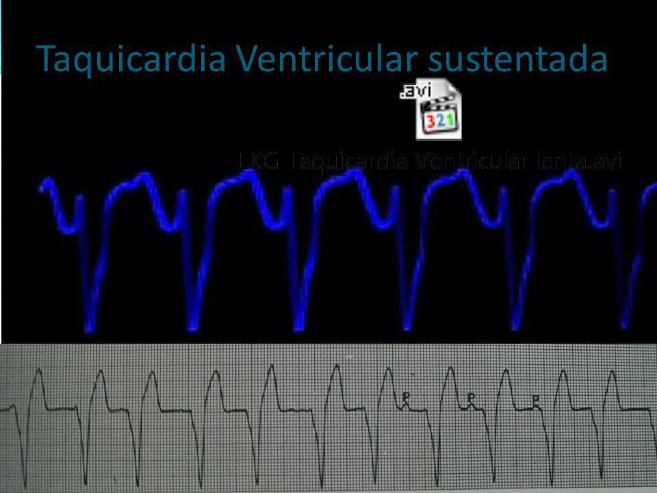 Taquicardia Ventricular sustentada