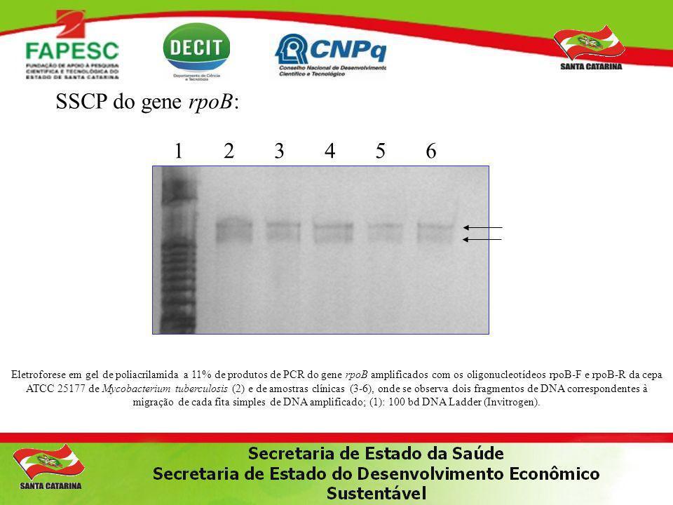 SSCP do gene rpoB: 1 2 3 4 5 6.