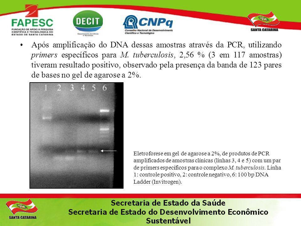 Após amplificação do DNA dessas amostras através da PCR, utilizando primers específicos para M. tuberculosis, 2,56 % (3 em 117 amostras) tiveram resultado positivo, observado pela presença da banda de 123 pares de bases no gel de agarose a 2%.