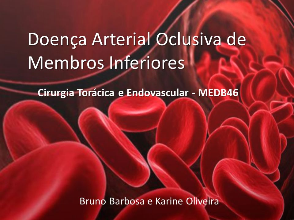 Cirurgia Torácica e Endovascular - MEDB46
