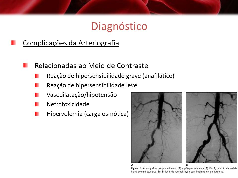 Diagnóstico Complicações da Arteriografia