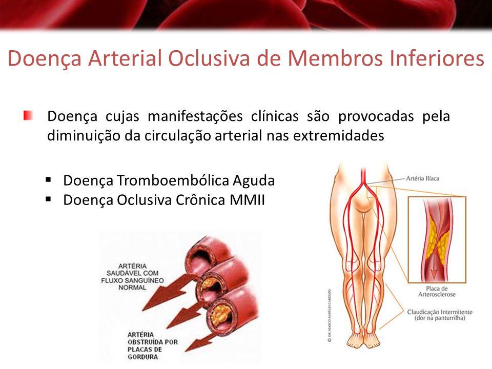 Doença Arterial Oclusiva de Membros Inferiores