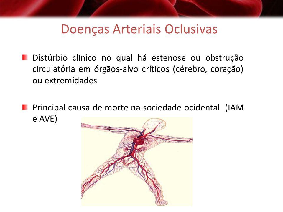Doenças Arteriais Oclusivas