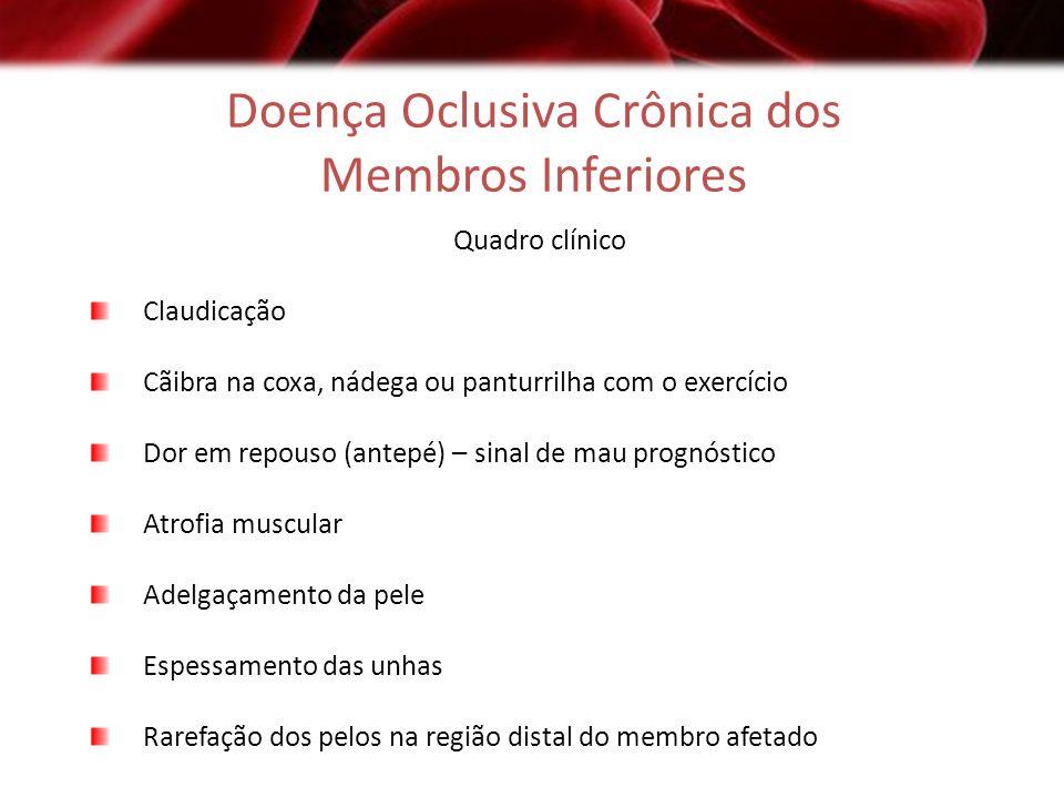 Doença Oclusiva Crônica dos Membros Inferiores
