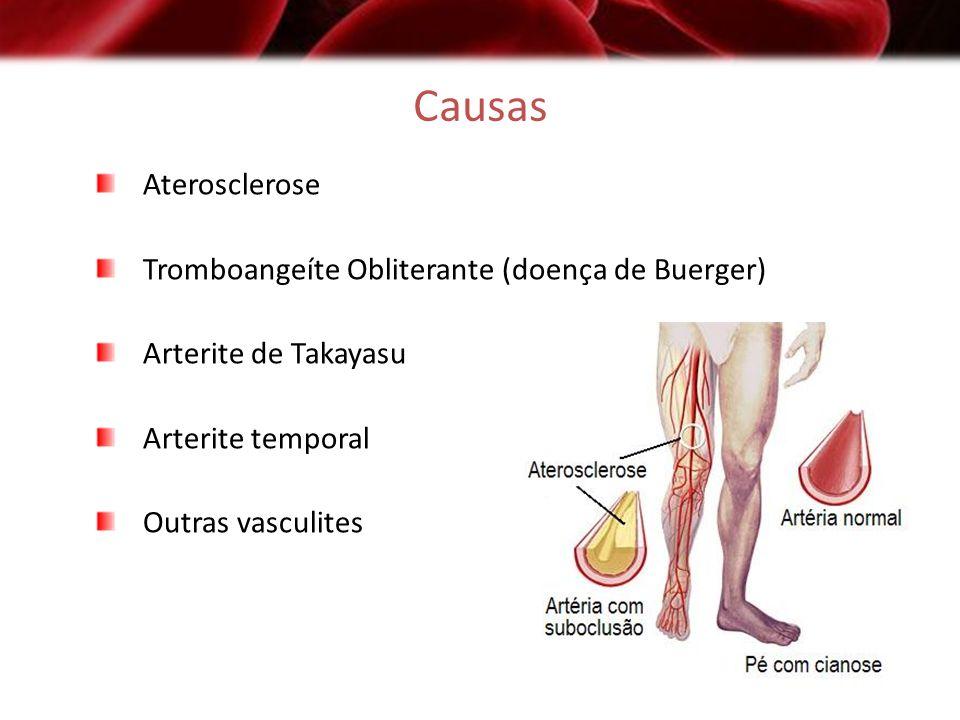Causas Aterosclerose Tromboangeíte Obliterante (doença de Buerger)