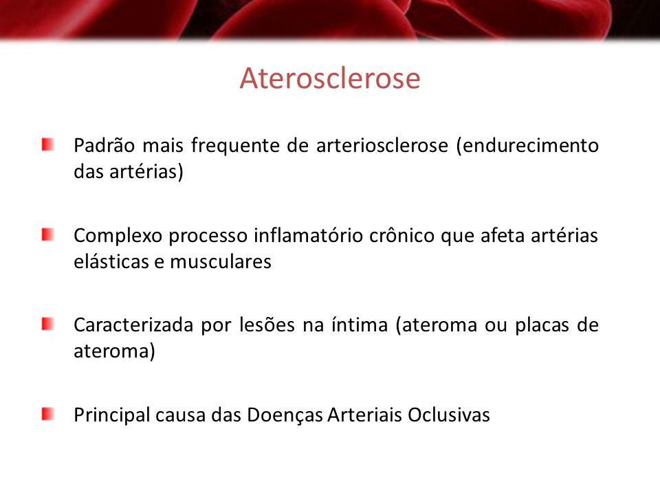 Aterosclerose Padrão mais frequente de arteriosclerose (endurecimento das artérias)