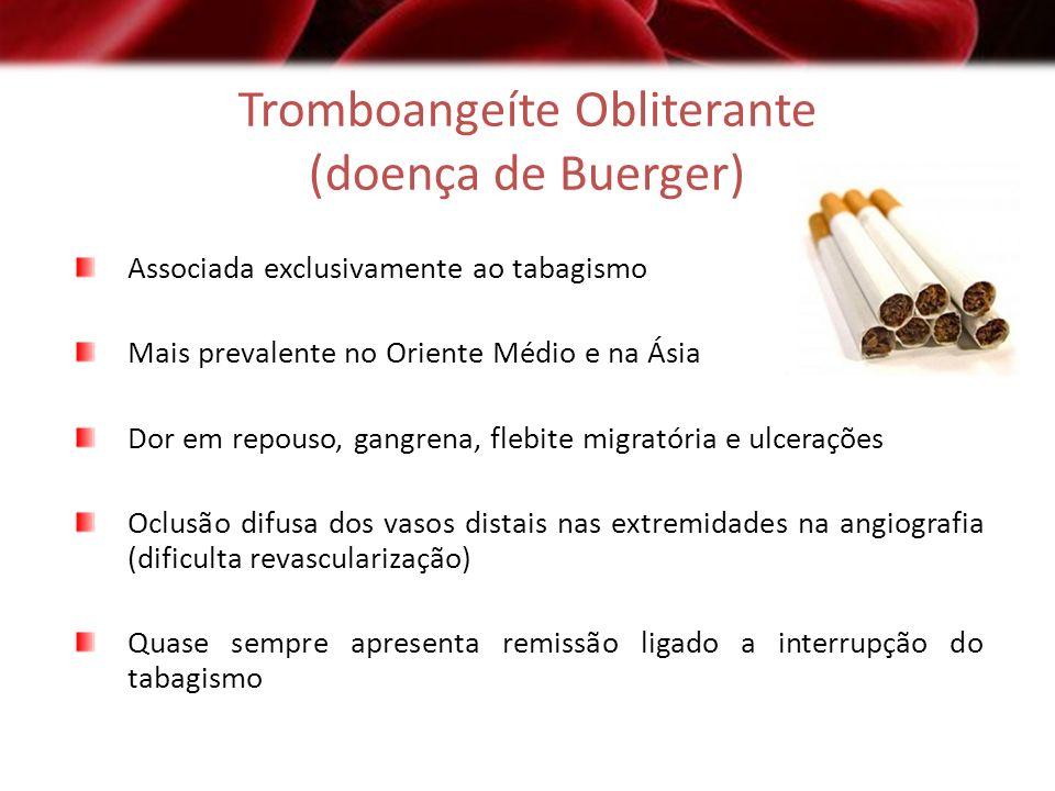 Tromboangeíte Obliterante (doença de Buerger)