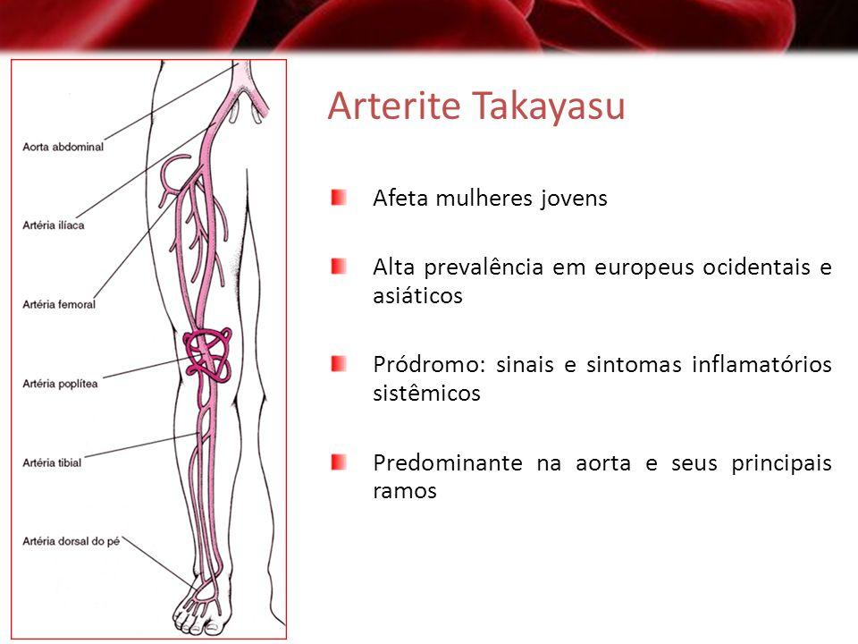 Arterite Takayasu Afeta mulheres jovens