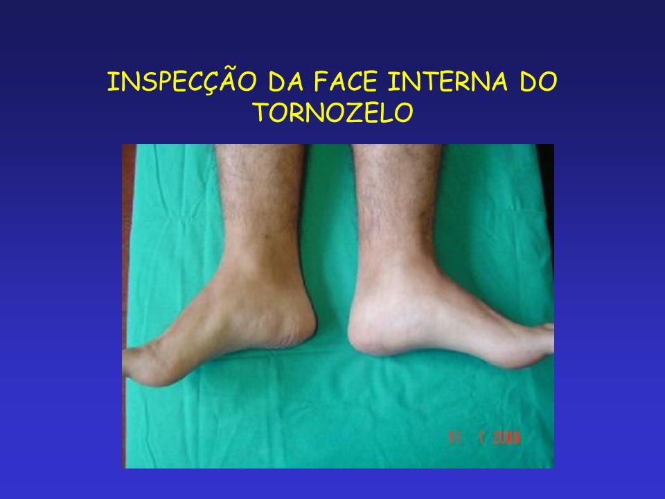 INSPECÇÃO DA FACE INTERNA DO TORNOZELO