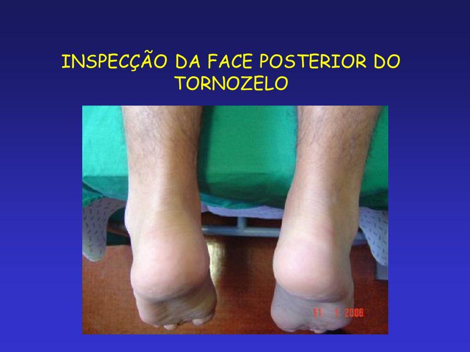 INSPECÇÃO DA FACE POSTERIOR DO TORNOZELO