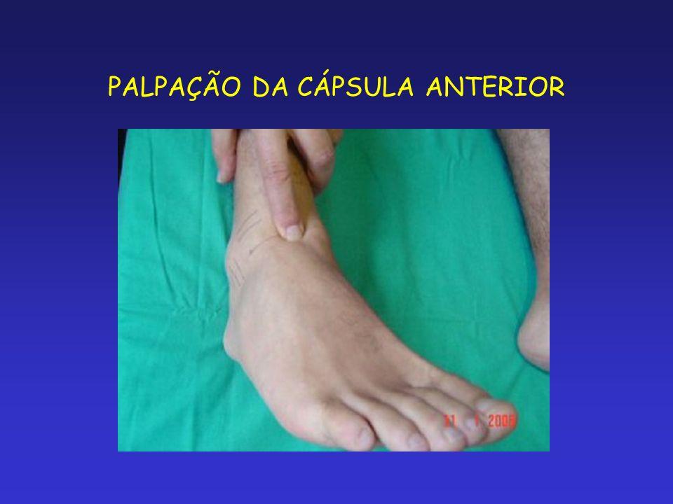 PALPAÇÃO DA CÁPSULA ANTERIOR