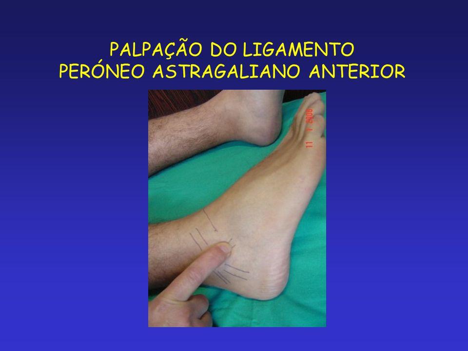 PALPAÇÃO DO LIGAMENTO PERÓNEO ASTRAGALIANO ANTERIOR
