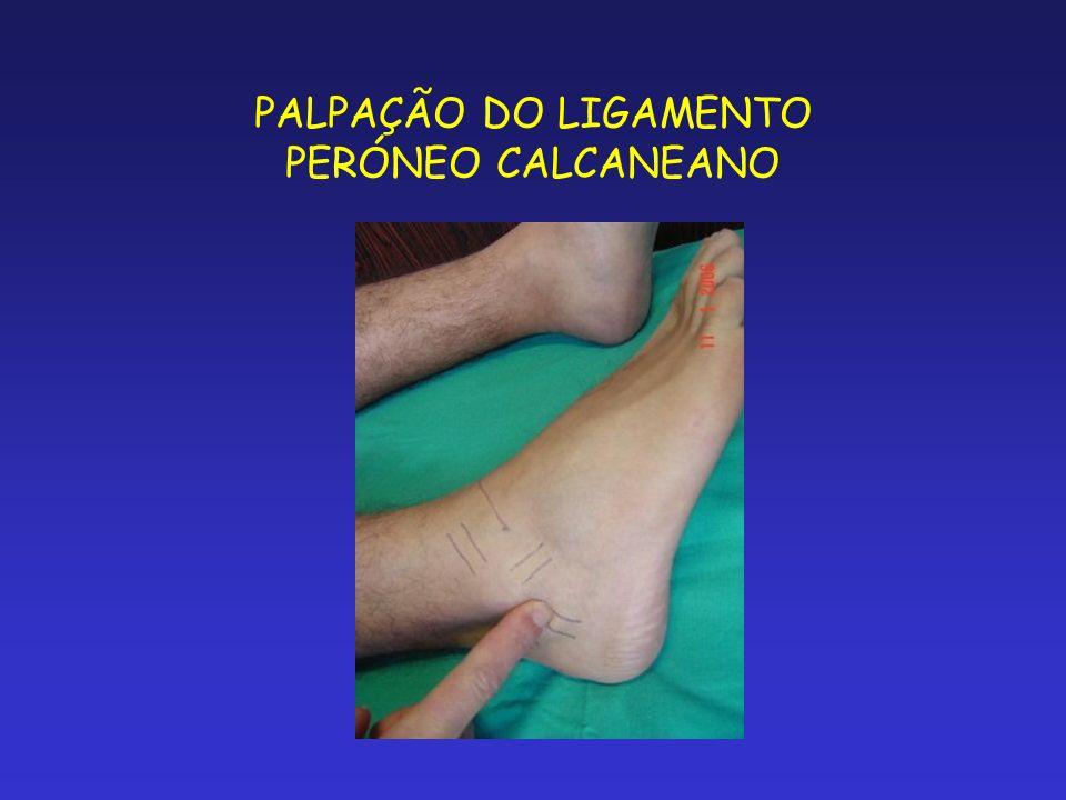 PALPAÇÃO DO LIGAMENTO PERÓNEO CALCANEANO