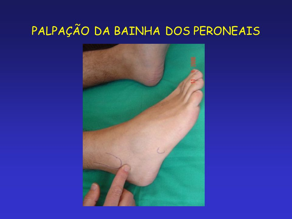 PALPAÇÃO DA BAINHA DOS PERONEAIS