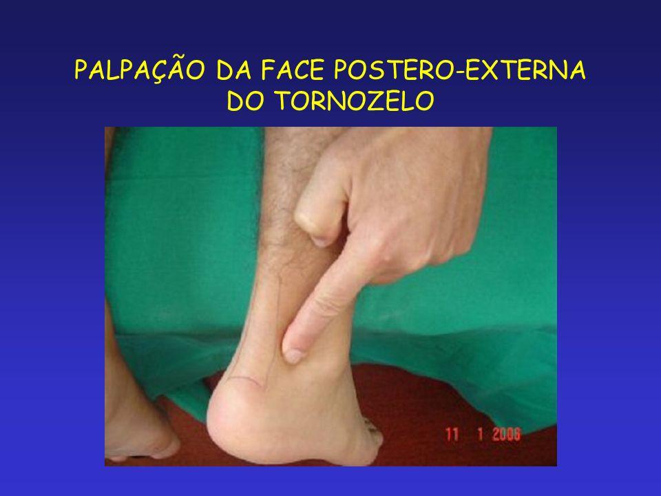PALPAÇÃO DA FACE POSTERO-EXTERNA DO TORNOZELO