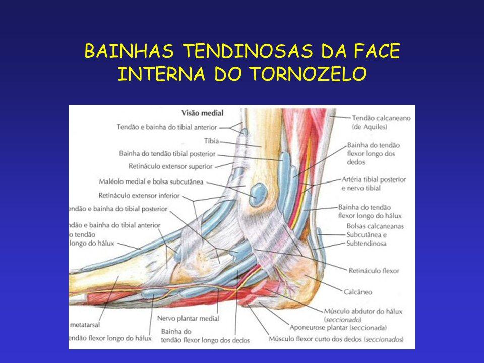 BAINHAS TENDINOSAS DA FACE INTERNA DO TORNOZELO