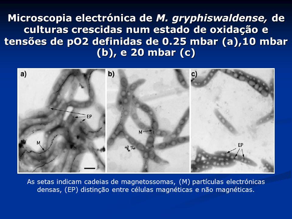 Microscopia electrónica de M