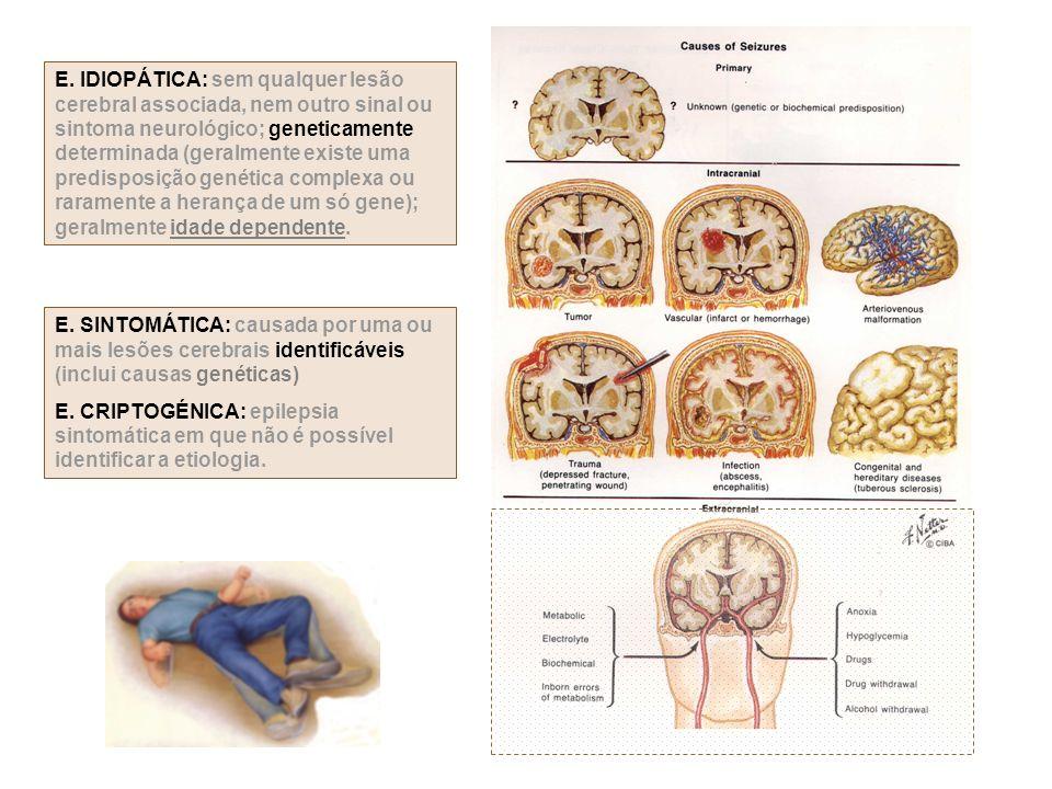 E. IDIOPÁTICA: sem qualquer lesão cerebral associada, nem outro sinal ou sintoma neurológico; geneticamente determinada (geralmente existe uma predisposição genética complexa ou raramente a herança de um só gene); geralmente idade dependente.