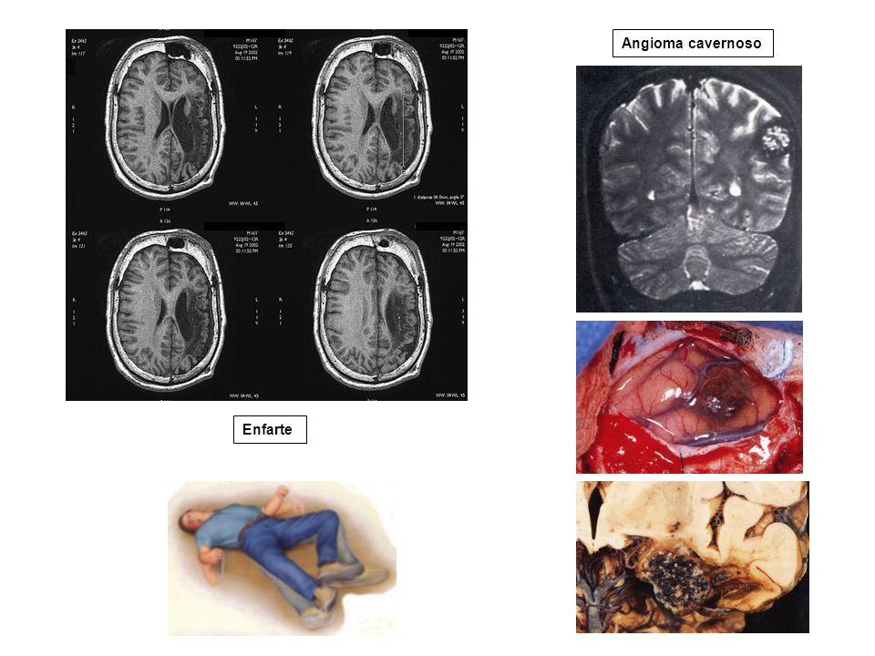 Angioma cavernoso Enfarte