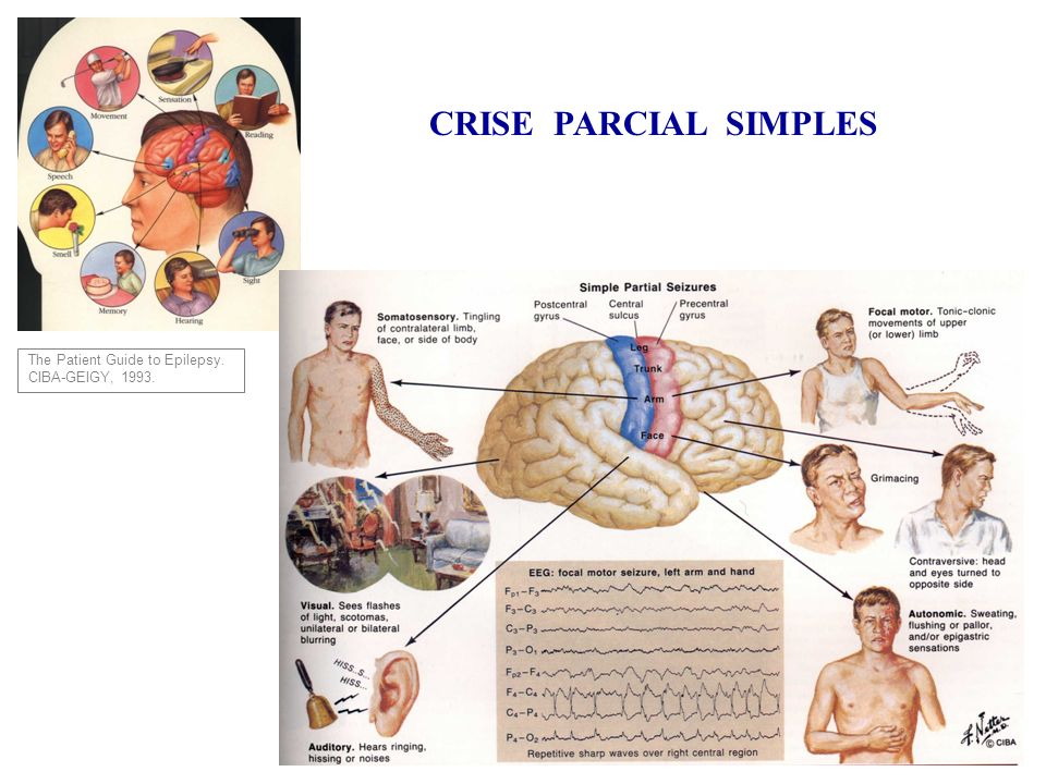 CRISE PARCIAL SIMPLES The Patient Guide to Epilepsy. CIBA-GEIGY, 1993.