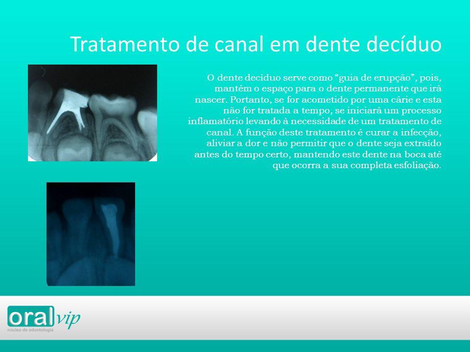 Tratamento de canal em dente decíduo