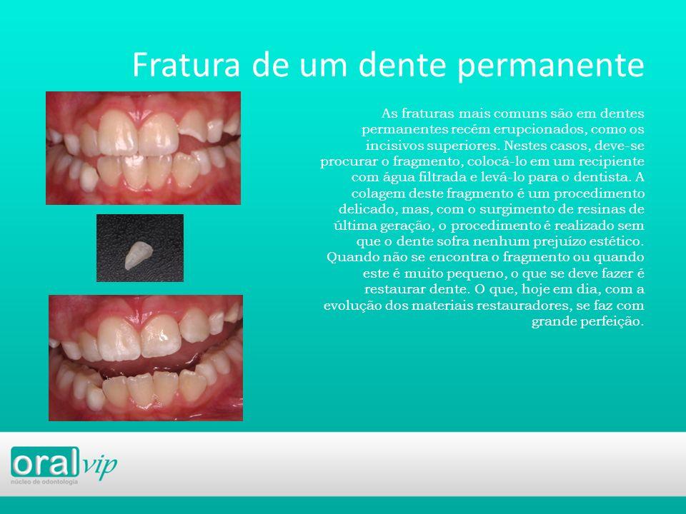 Fratura de um dente permanente