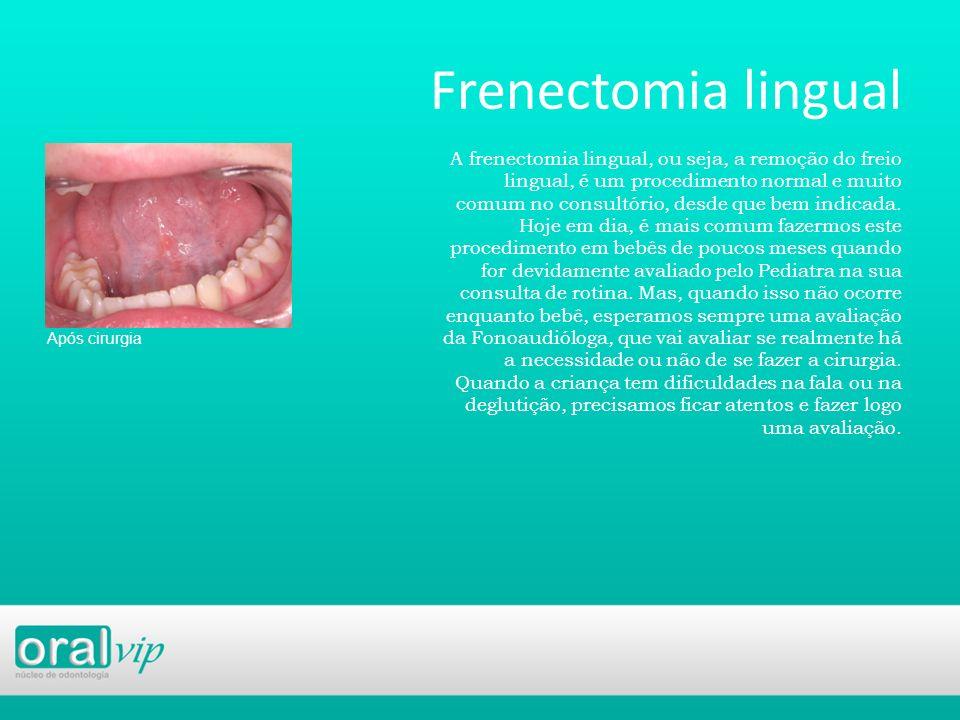 Frenectomia lingual