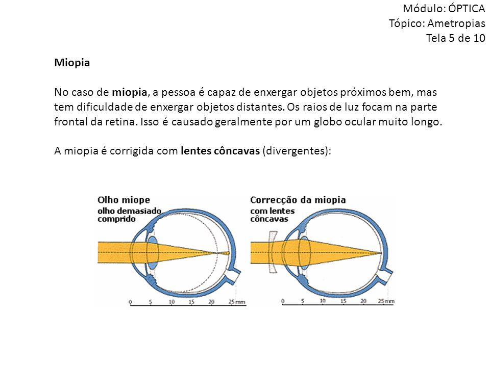 Módulo: ÓPTICA Tópico: Ametropias Tela 5 de 10