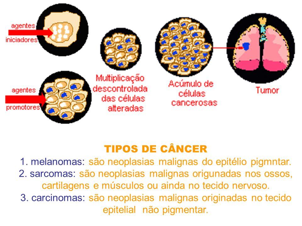 1. melanomas: são neoplasias malignas do epitélio pigmntar.