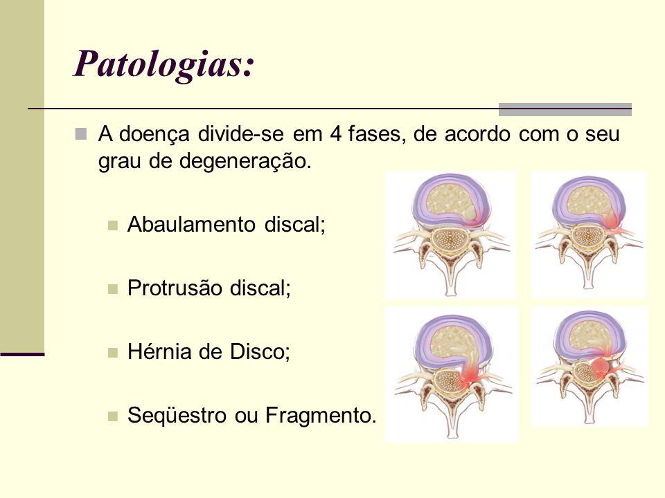 Patologias: A doença divide-se em 4 fases, de acordo com o seu grau de degeneração. Abaulamento discal;