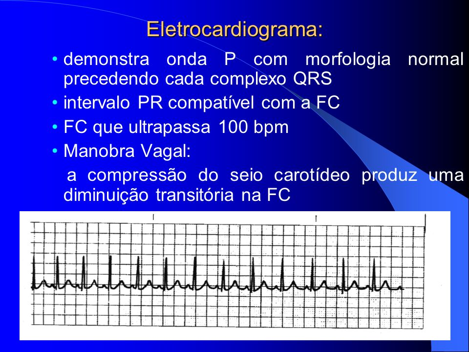 Eletrocardiograma: demonstra onda P com morfologia normal precedendo cada complexo QRS. intervalo PR compatível com a FC.