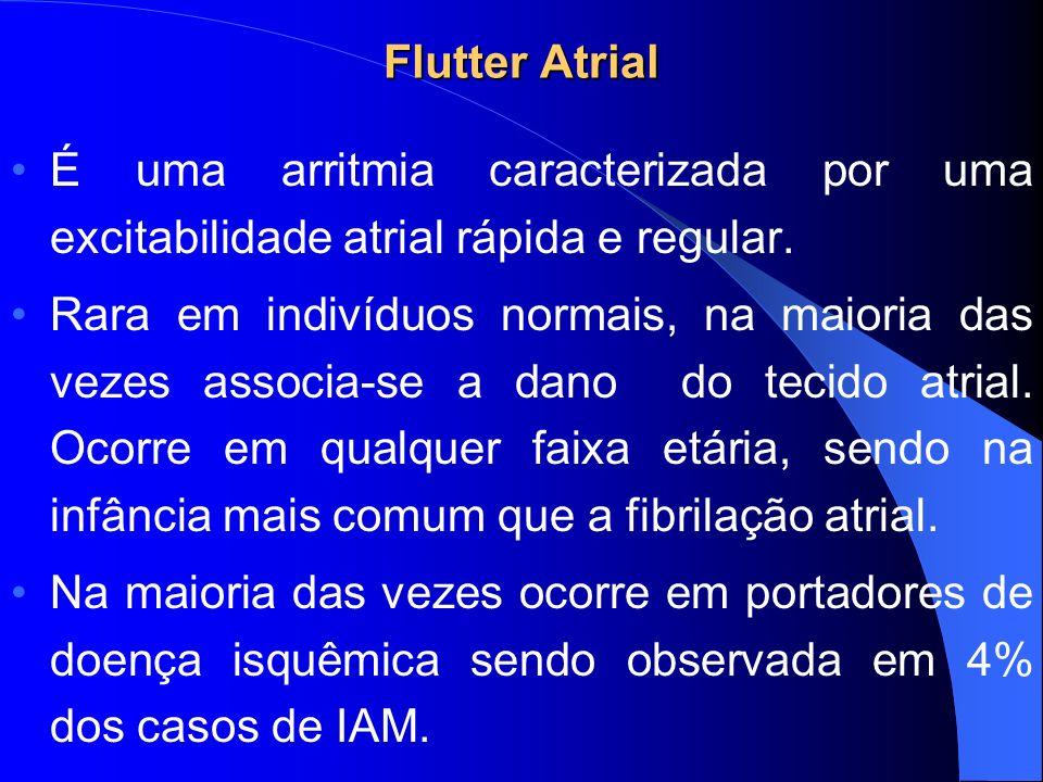 Flutter Atrial É uma arritmia caracterizada por uma excitabilidade atrial rápida e regular.