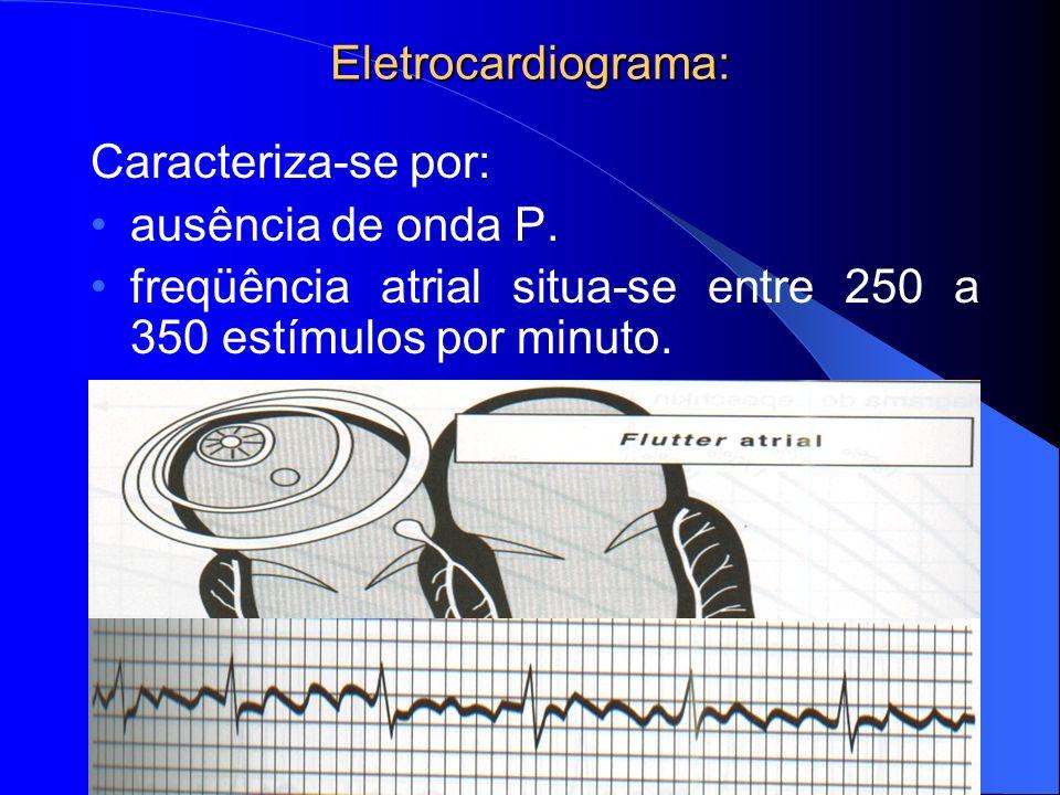 Eletrocardiograma: Caracteriza-se por: ausência de onda P.
