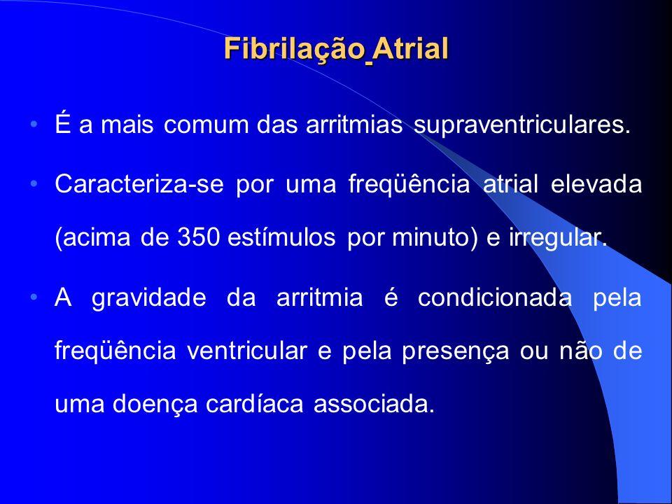 Fibrilação Atrial É a mais comum das arritmias supraventriculares.