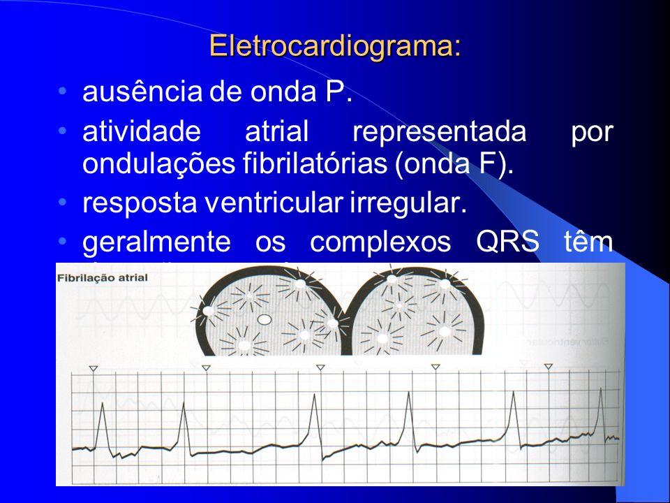 Eletrocardiograma: ausência de onda P. atividade atrial representada por ondulações fibrilatórias (onda F).