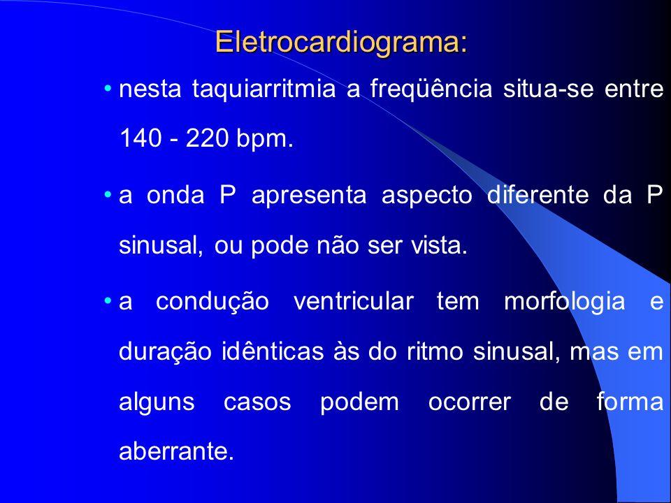 Eletrocardiograma: nesta taquiarritmia a freqüência situa-se entre 140 - 220 bpm.