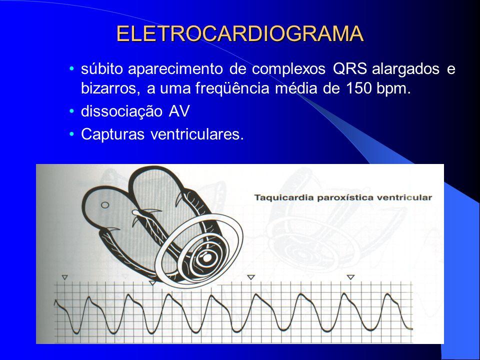 ELETROCARDIOGRAMA súbito aparecimento de complexos QRS alargados e bizarros, a uma freqüência média de 150 bpm.