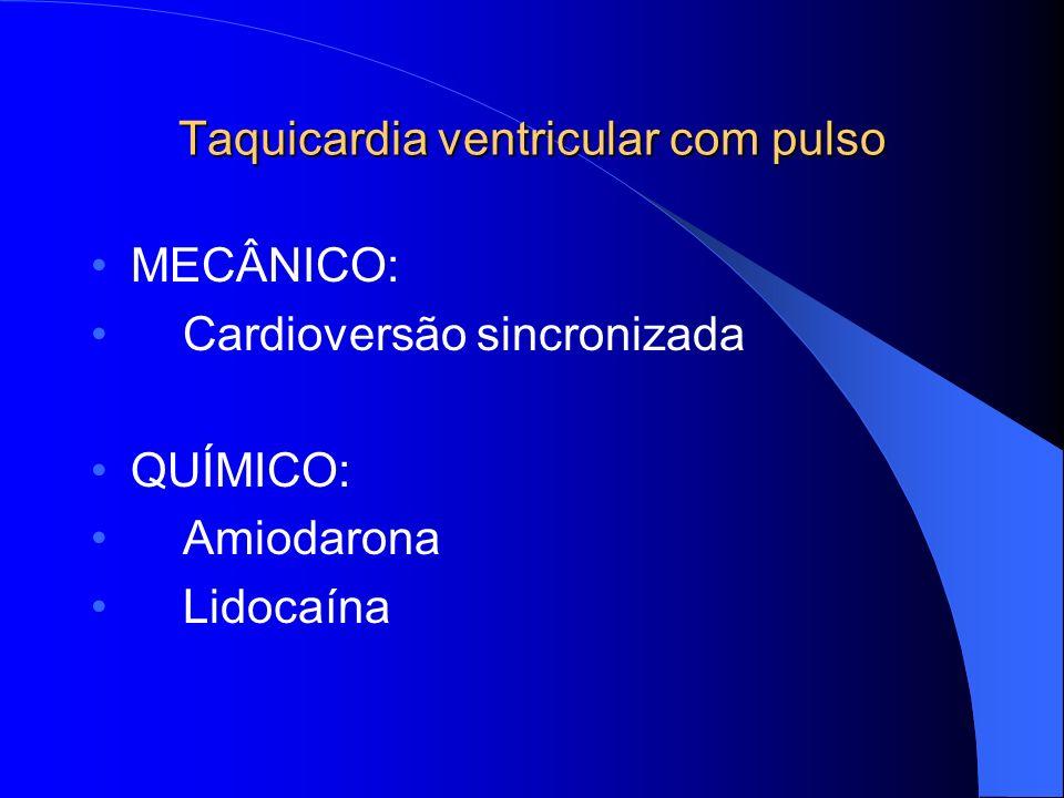 Taquicardia ventricular com pulso