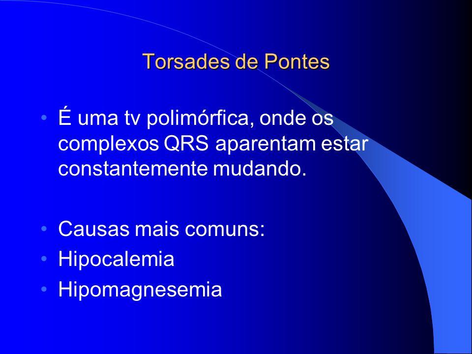 Torsades de Pontes É uma tv polimórfica, onde os complexos QRS aparentam estar constantemente mudando.