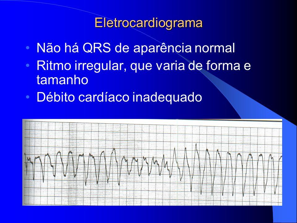 Eletrocardiograma Não há QRS de aparência normal. Ritmo irregular, que varia de forma e tamanho.
