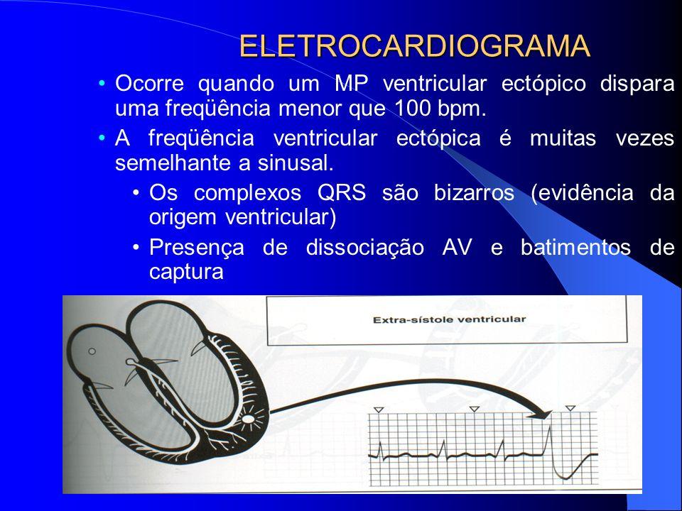 ELETROCARDIOGRAMA Ocorre quando um MP ventricular ectópico dispara uma freqüência menor que 100 bpm.
