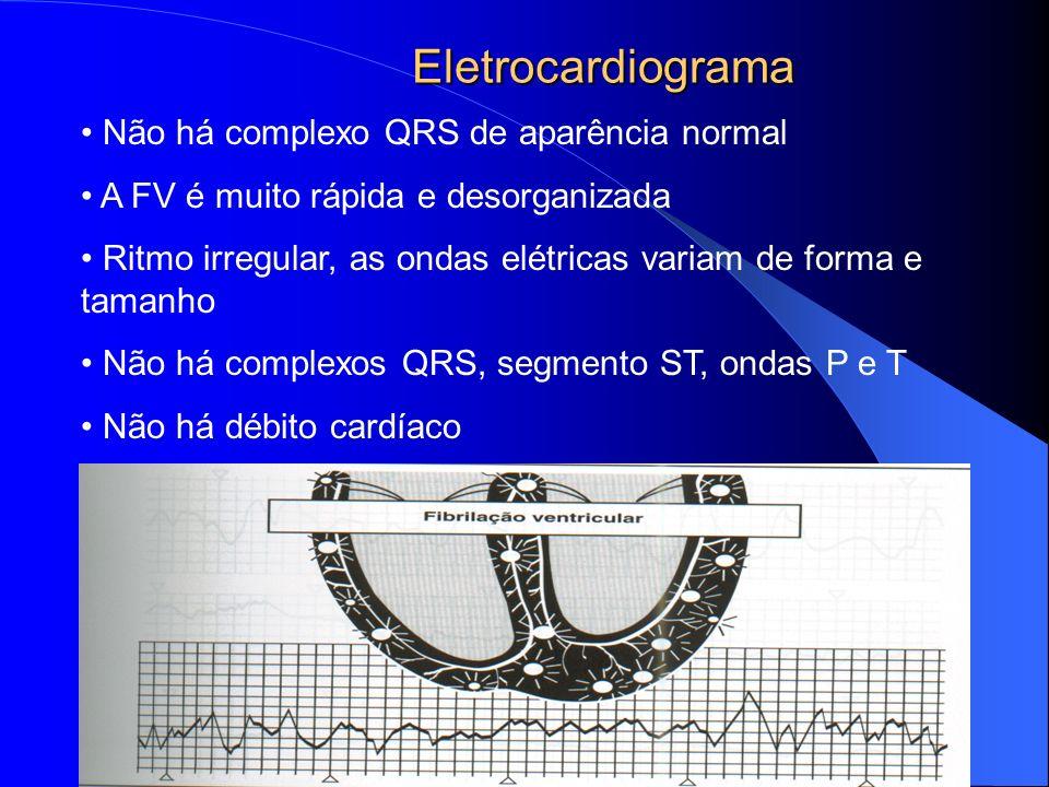 Eletrocardiograma Não há complexo QRS de aparência normal