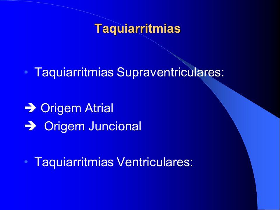 Taquiarritmias Taquiarritmias Supraventriculares:  Origem Atrial.